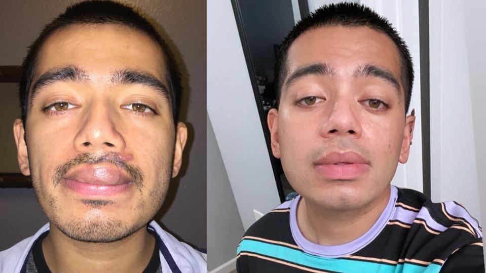 Deux photos d'Edward Centeno avant et après la guérison de sa lèvre